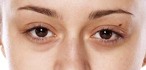 目の下のくまの症状
